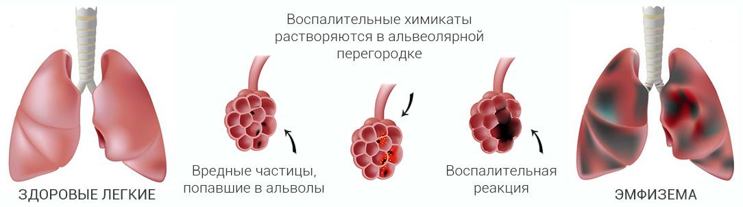 Эмфизема легких. Что это такое? Как лечить?