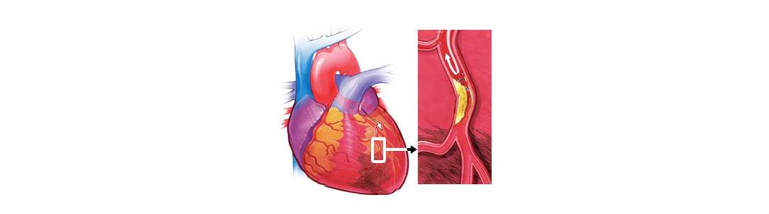 Инфаркт миокарда: причины возникновения, симптомы, реабилитация
