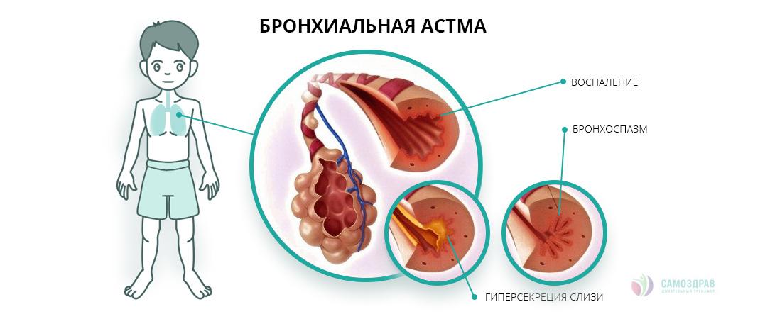 Детская астма