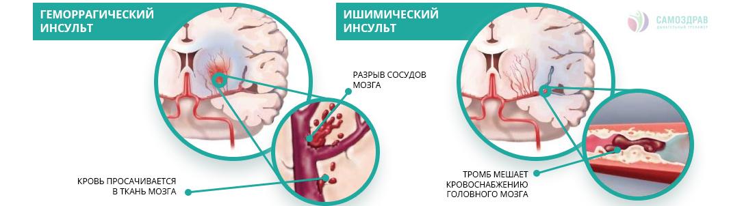 Как избежать инсульта