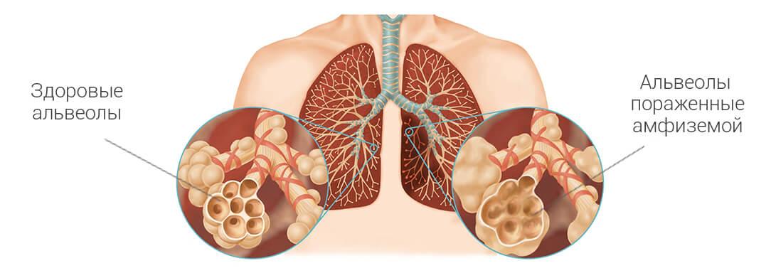 дыхательная гимнастика при эмфиземе легких