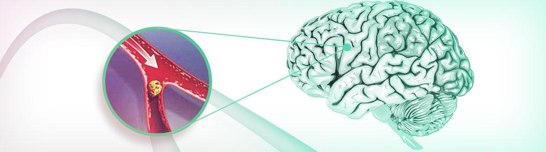 Как лечить атеросклероз?